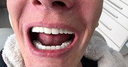 Hungary dental implants